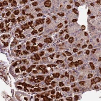 Immunohistochemistry (Formalin/PFA-fixed paraffin-embedded sections) - Anti-SEH1L antibody (ab122608)