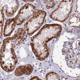 Immunohistochemistry (Formalin/PFA-fixed paraffin-embedded sections) - Anti-SEL1L3 antibody (ab122614)