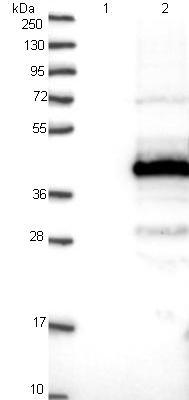 Western blot - Anti-C11orf49 antibody (ab122616)