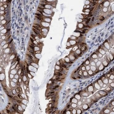 Immunohistochemistry (Formalin/PFA-fixed paraffin-embedded sections) - Anti-CKAP2L antibody (ab122617)