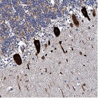Immunohistochemistry (Formalin/PFA-fixed paraffin-embedded sections) - Anti-KIAA1370 antibody (ab122625)