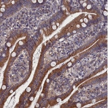 Immunohistochemistry (Formalin/PFA-fixed paraffin-embedded sections) - Anti-SPATA13 antibody (ab122627)