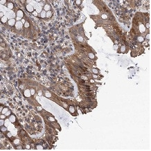 Immunohistochemistry (Formalin/PFA-fixed paraffin-embedded sections) - Anti-TMEM39B antibody (ab122630)