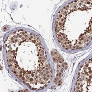 Immunohistochemistry (Formalin/PFA-fixed paraffin-embedded sections) - Anti-CLPX antibody (ab122644)