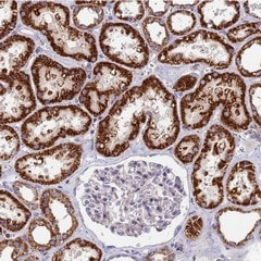 Immunohistochemistry (Formalin/PFA-fixed paraffin-embedded sections) - Anti-ADAT1 antibody (ab122662)