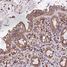 Immunohistochemistry (Formalin/PFA-fixed paraffin-embedded sections) - Anti-METTL22 antibody (ab122669)