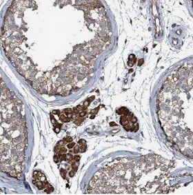 Immunohistochemistry (Formalin/PFA-fixed paraffin-embedded sections) - Anti-CR16 antibody (ab122703)