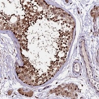 Immunohistochemistry (Formalin/PFA-fixed paraffin-embedded sections) - Anti-CDKN2AIP antibody (ab122715)