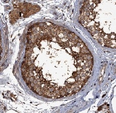 Immunohistochemistry (Formalin/PFA-fixed paraffin-embedded sections) - Anti-UNC13C antibody (ab122725)