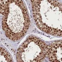 Immunohistochemistry (Formalin/PFA-fixed paraffin-embedded sections) - Anti-SLC7A6OS antibody (ab122727)