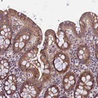 Immunohistochemistry (Formalin/PFA-fixed paraffin-embedded sections) - Anti-FAM98C antibody (ab122737)