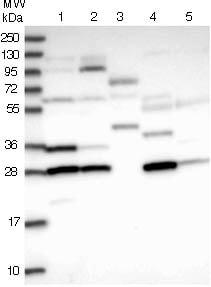 Western blot - Anti-C15orf43 antibody (ab122743)