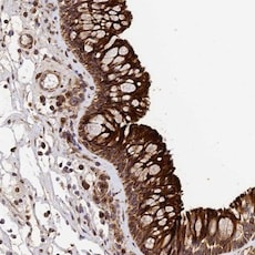 Immunohistochemistry (Formalin/PFA-fixed paraffin-embedded sections) - Anti-TMEM111 antibody (ab122786)