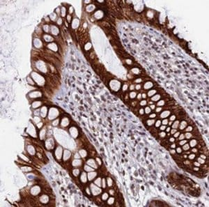 Immunohistochemistry (Formalin/PFA-fixed paraffin-embedded sections) - Anti-GR6 antibody (ab122794)