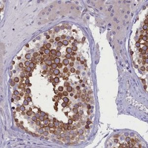Immunohistochemistry (Formalin/PFA-fixed paraffin-embedded sections) -  (ab122795)