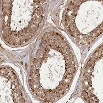 Immunohistochemistry (Formalin/PFA-fixed paraffin-embedded sections) - Anti-C2orf84 antibody (ab122797)