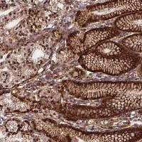 Immunohistochemistry (Formalin/PFA-fixed paraffin-embedded sections) - Anti-C20orf151 antibody (ab122804)