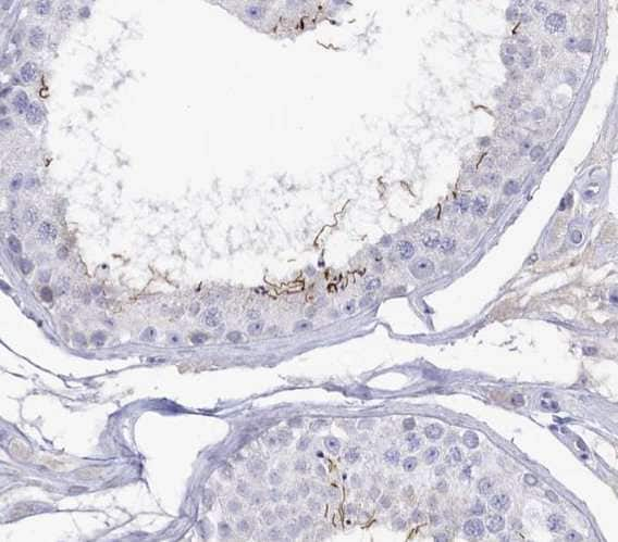 Immunohistochemistry (Formalin/PFA-fixed paraffin-embedded sections) - Anti-GPR123 antibody (ab122814)