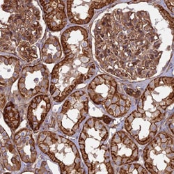 Immunohistochemistry (Formalin/PFA-fixed paraffin-embedded sections) - Anti-C20orf152 antibody (ab122841)