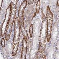 Immunohistochemistry (Formalin/PFA-fixed paraffin-embedded sections) - Anti-CHSY3 antibody (ab122874)