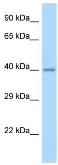 Western blot - Anti-Apolipoprotein L 4 antibody (ab122931)