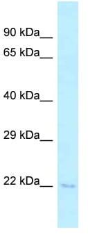 Western blot - Anti-C1orf19 antibody (ab122934)