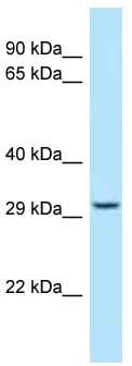 Western blot - Anti-STOM antibody (ab122937)