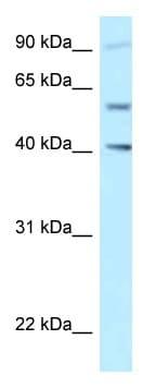 Western blot - Anti-SHCBP1L antibody (ab122942)