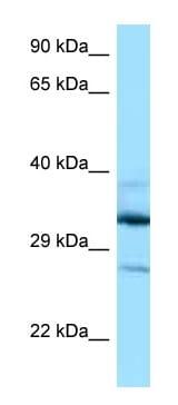 Western blot - Anti-DOHH antibody (ab122946)