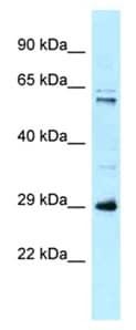 Western blot - Anti-HSD17B8 antibody (ab123005)