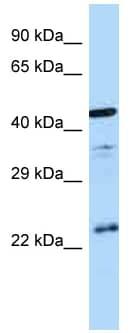 Western blot - Anti-Vasopressin V1b receptor antibody (ab123012)