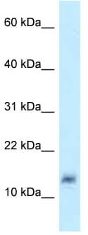 Western blot - Anti-LYZL4 antibody (ab123019)
