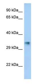Western blot - Anti-AKR1CL2 antibody (ab123026)