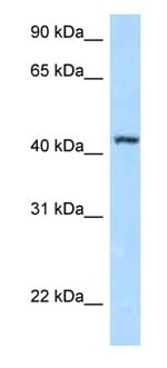 Western blot - Anti-Fbxl8 antibody (ab123029)