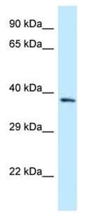 Western blot - Anti-FPGT antibody (ab123044)