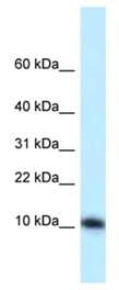 Western blot - Anti-Surb7 antibody (ab123052)