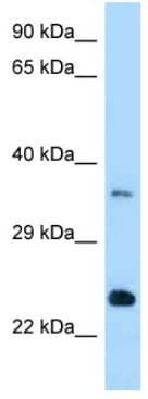 Western blot - Anti-RAB13 antibody (ab123112)