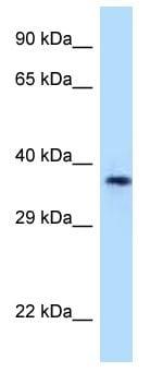 Western blot - Anti-CD1a antibody (ab123133)