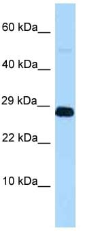 Western blot - Anti-RNF11 antibody (ab123141)