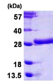 SDS-PAGE - beta Casein protein (His tag) (ab123168)