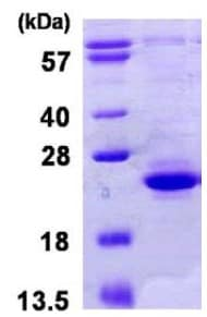 SDS-PAGE - TIFA protein (His tag) (ab123199)