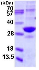 SDS-PAGE - Proteasome 20S alpha 5 protein (His tag) (ab123211)