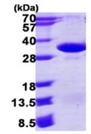 SDS-PAGE - PSMA4 protein (ab123216)
