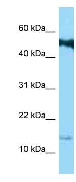 Western blot - Anti-SPRR1b antibody (ab123237)
