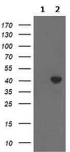 Western blot - Anti-ACAT2 antibody [7B1] (ab123934)