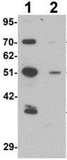 Western blot - Anti-Thymopoietin antibody (ab124167)