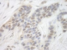 Immunohistochemistry (Formalin/PFA-fixed paraffin-embedded sections) - Anti-Cdk8 antibody (ab124218)