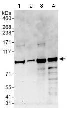 Western blot - Anti-PATL1 antibody (ab124257)