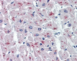Immunohistochemistry (Formalin/PFA-fixed paraffin-embedded sections) - Anti-ASAH1 antibody [1A7] (ab124262)