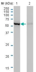 Western blot - Anti-CBS antibody [3E1] (ab124276)